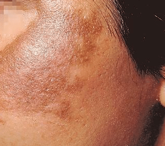 black patches on face