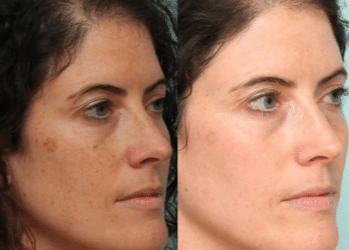 black patches on face before and after removal