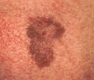 dark areas of skin