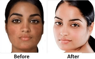 how to lighten skin fast