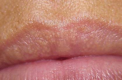 white bumps on lips