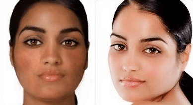 Before and after glutathione and vitamin E