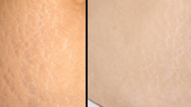 coconut oil for stretch marks before and after