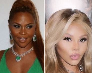 Lil Kim before and after skin whitening surgery