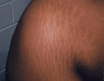stretch marks on arms