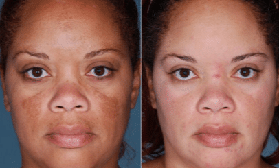 alpha arbutin skin lightening