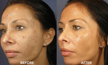 before and after hydroquinone