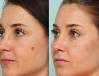 brown spots before and after removal
