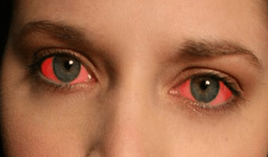 how to make your eyes red fast