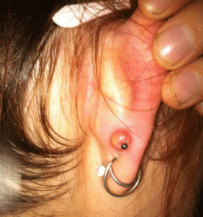 hydrogen peroxide in ear side effects