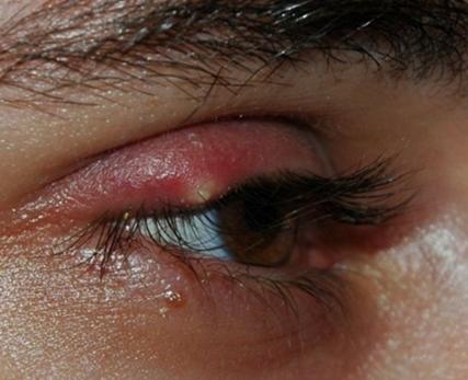 pimple on eyelid