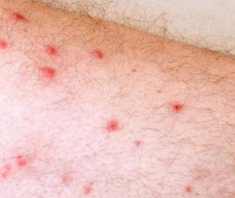 red spots on legs