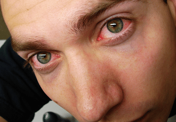 red eyes due to lack of sleep