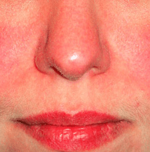 Red Rash on Face, Cheeks, Baby, Not Itchy, Hives, How to Get