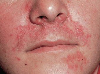 red rash on face