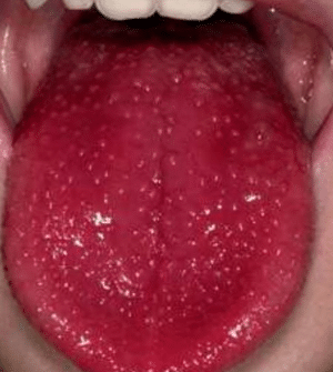 red spots on tongue pictures