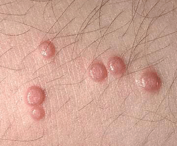 bumps on chest