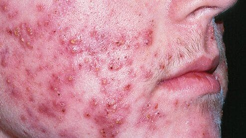 cropped boils s cystic acne
