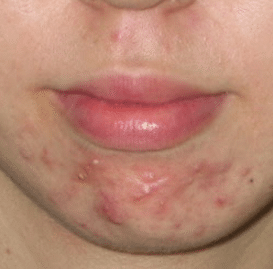 how to get rid of cystic bumps on your chin