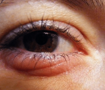 swollen eyes from crying causes
