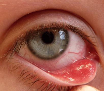 how to treat lump on eyelid