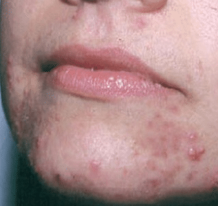 blackheads around mouth