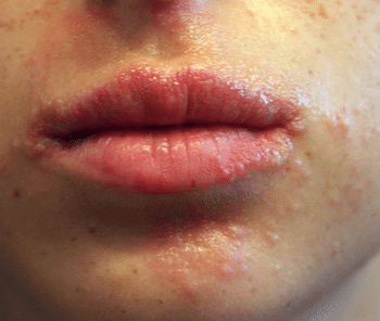 pimples around mouth