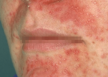 Rash Around Mouth Lips Itchy Dry Skin Nose Causes