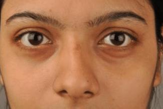 swollen under eyes