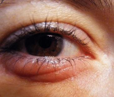 swollen under eye