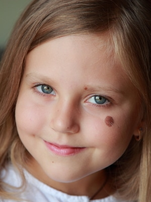 Strawberry Birthmark, Pictures, Meaning, Myths, Causes ...