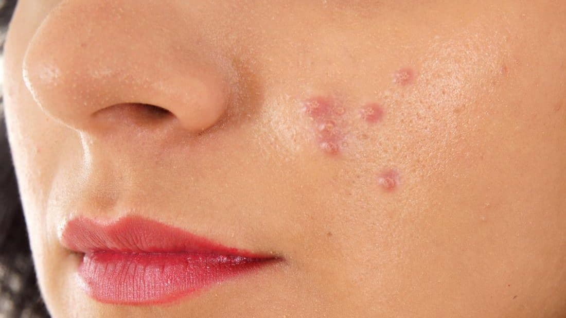 cropped woman with hard pimples on her face