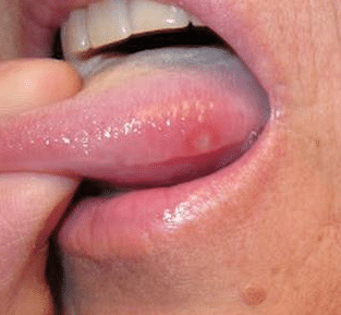 sores on side of tongue