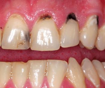 black spots on teeth