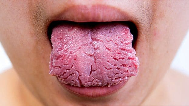 cropped oral tongue health slideshow