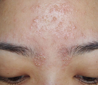heat bumps on face