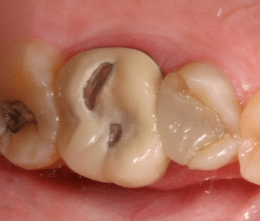 black holes in teeth