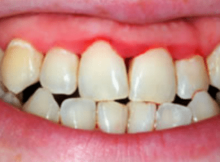 inflamed bleeding gums