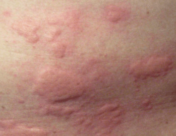 large itchy bumps on skin
