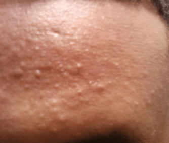 large bumps on forehead