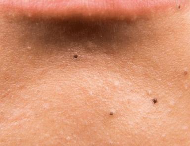 tiny black dots on skin