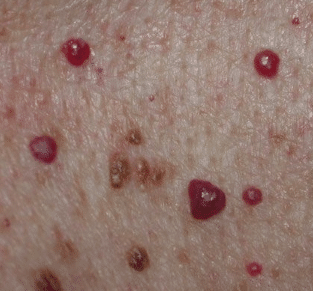 raised blood spots on skin