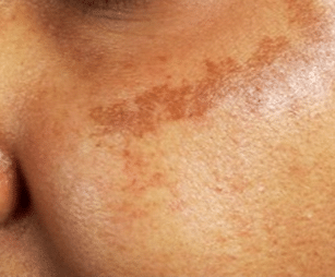 Brown Spots on Skin, Causes, Pictures, Patches, on Chest, Legs
