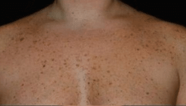 Brown Spots on Skin, Causes, Pictures, Patches, on Chest