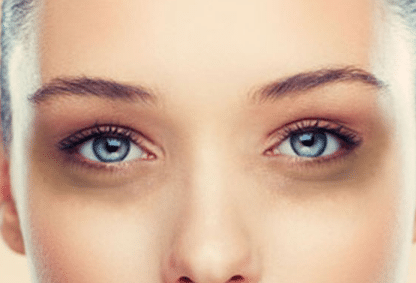 How to Get Rid of Dark Circles under your Eyes, Overnight ...