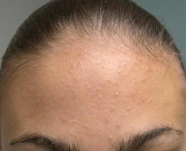 forehead heat bumps
