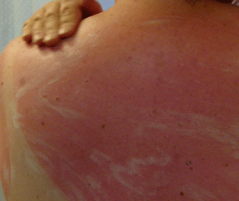 sunburn itch
