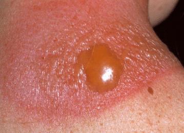 sunburn blisters