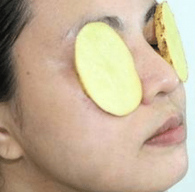 potatoe slices are good for eye bags