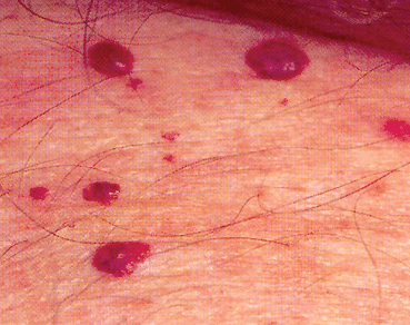 raised blood bumps on skin